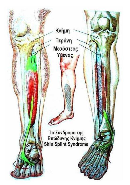 shin splint syndrome