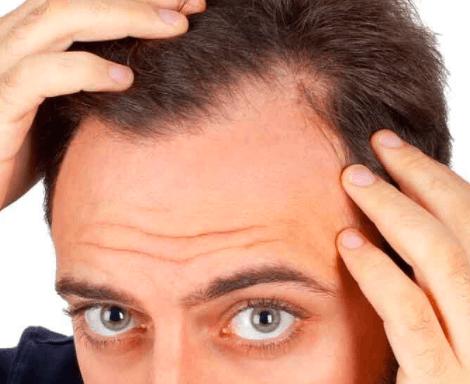 Understanding hair transplants